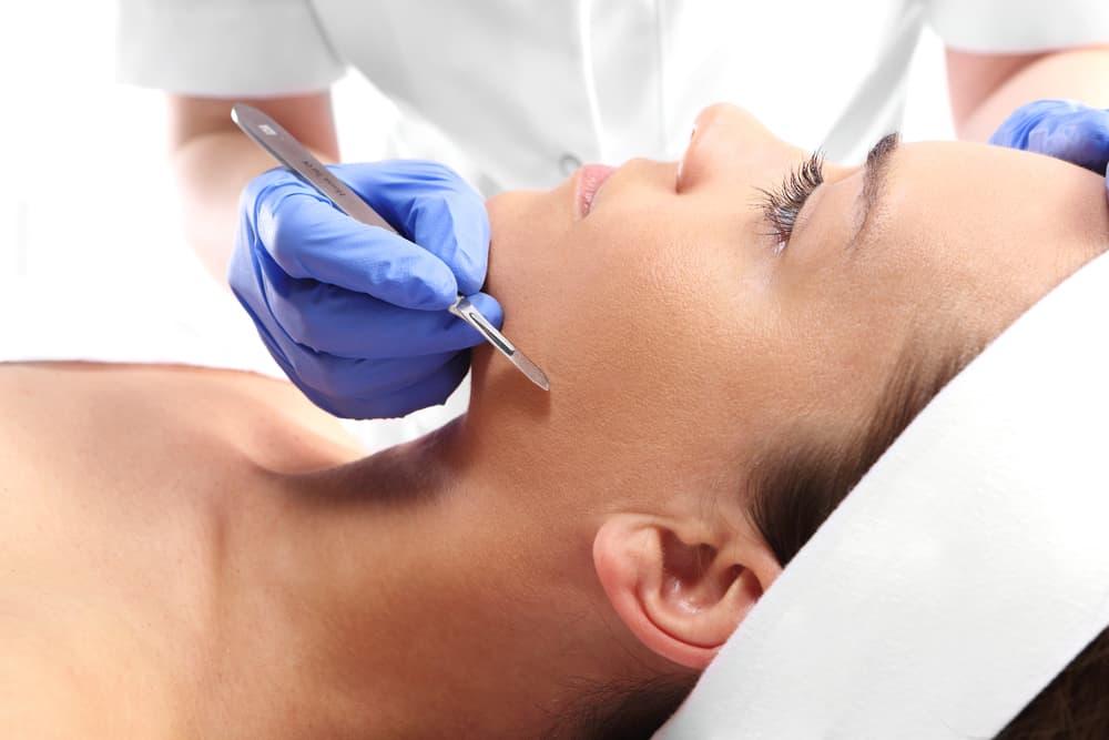 Dermaplaning procedure