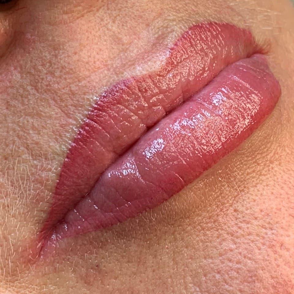 Example of lip treatment